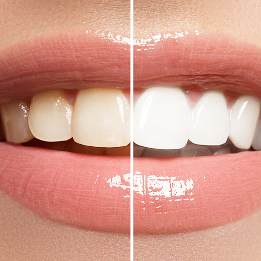 Smile before and after teeth whitening