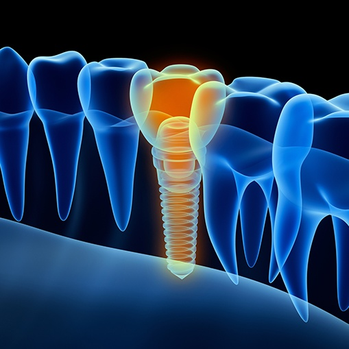 3 D animated dental implant supported replacement tooth