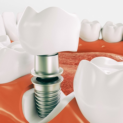 Animated parts of a dental implant supported replacement tooth