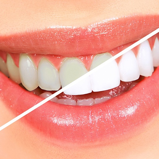 Teeth whitening treatment before and after